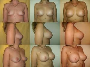 augmentare mamara implant mamar4