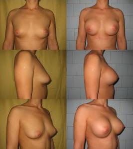 Corectie asimetrie cu implant