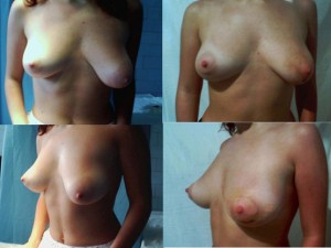 corectia asimetriei mamare
