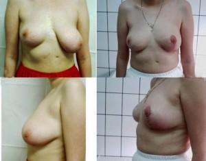 Corectie asimetrie mamara caz 6