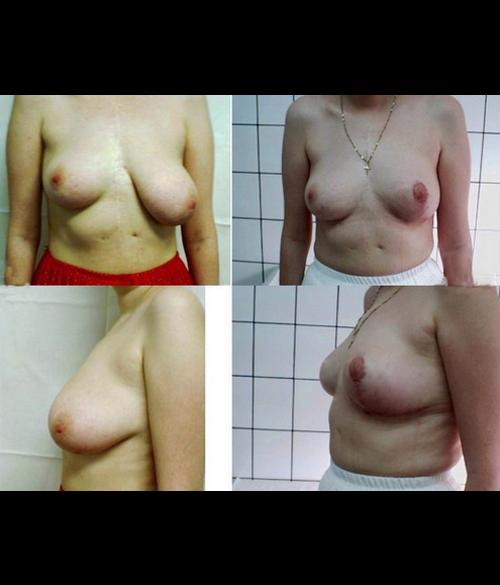 asimetrie mamara caz 6