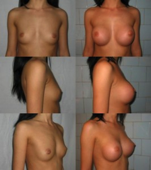 implant mamar studiu caz1